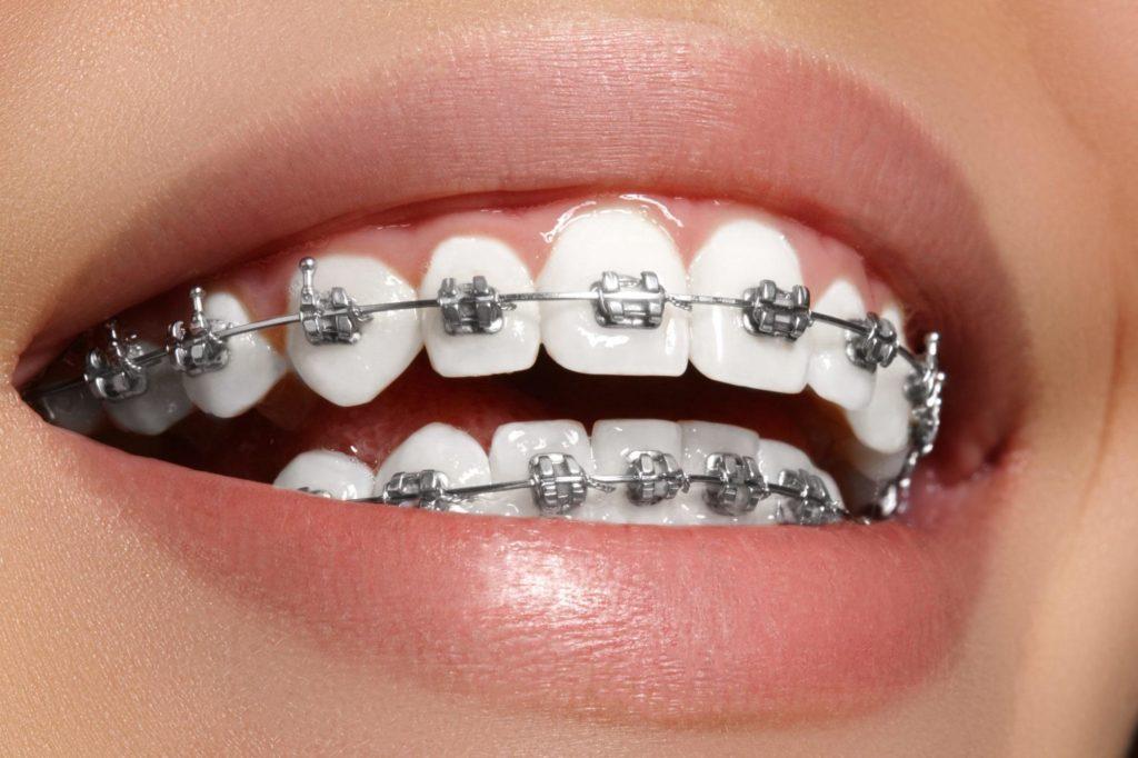 Выравнивание зубов в Краснодаре