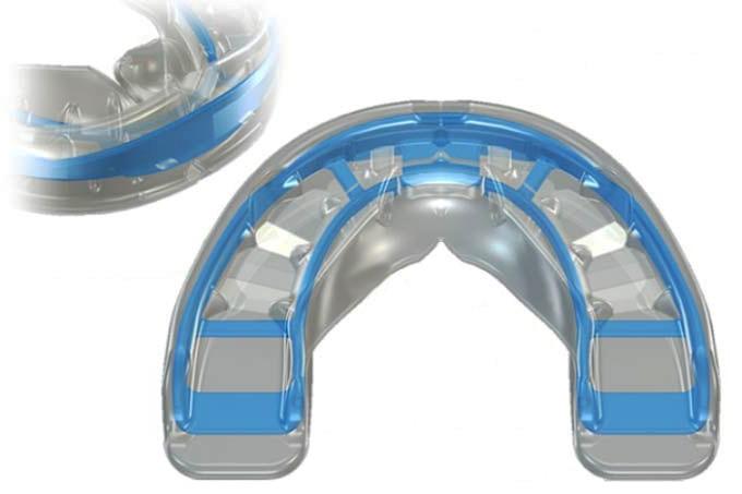 Современные трейнер-системы для зубов