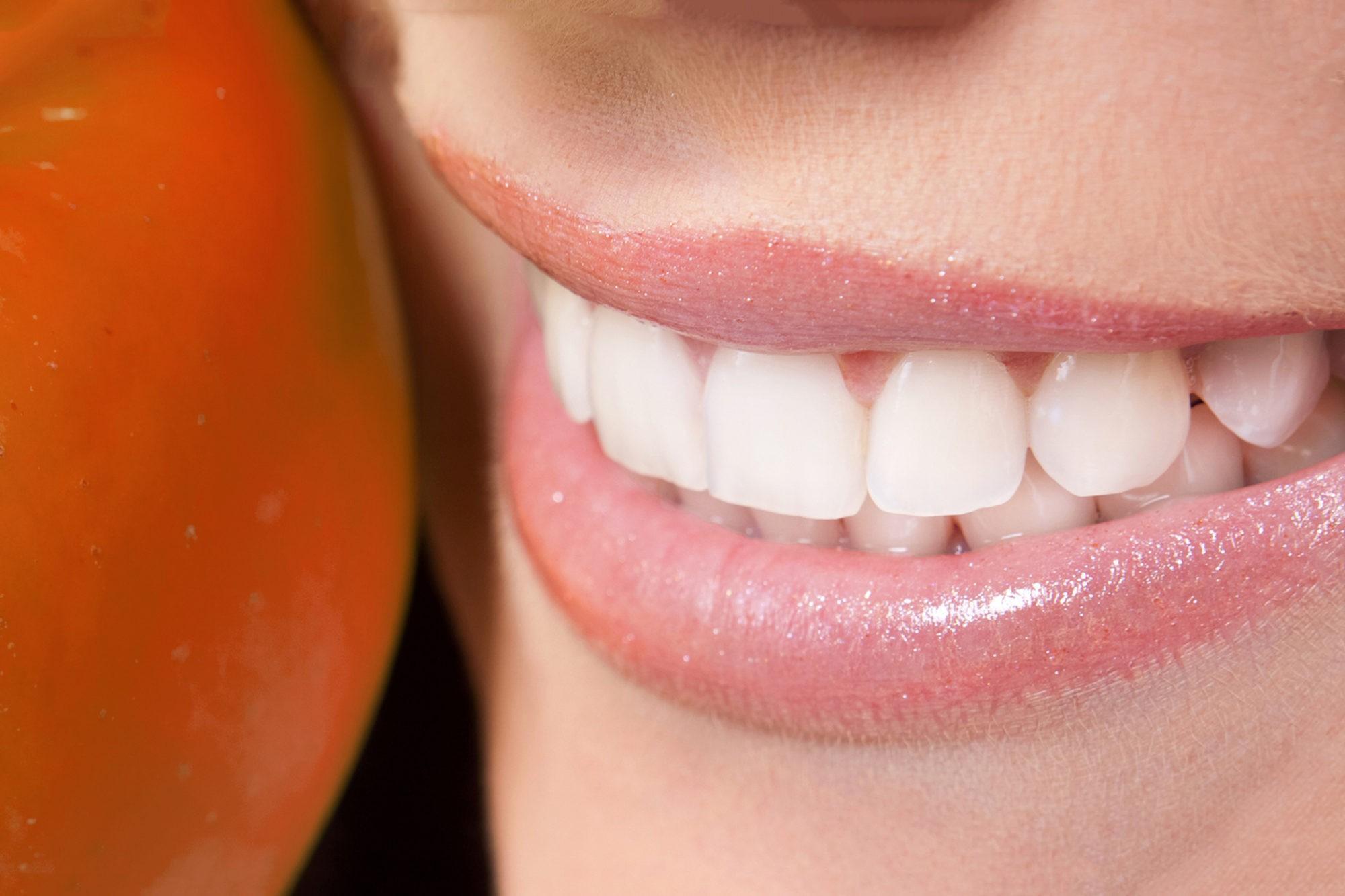 Реминерализация эмали зубов (фторирование) в Краснодаре