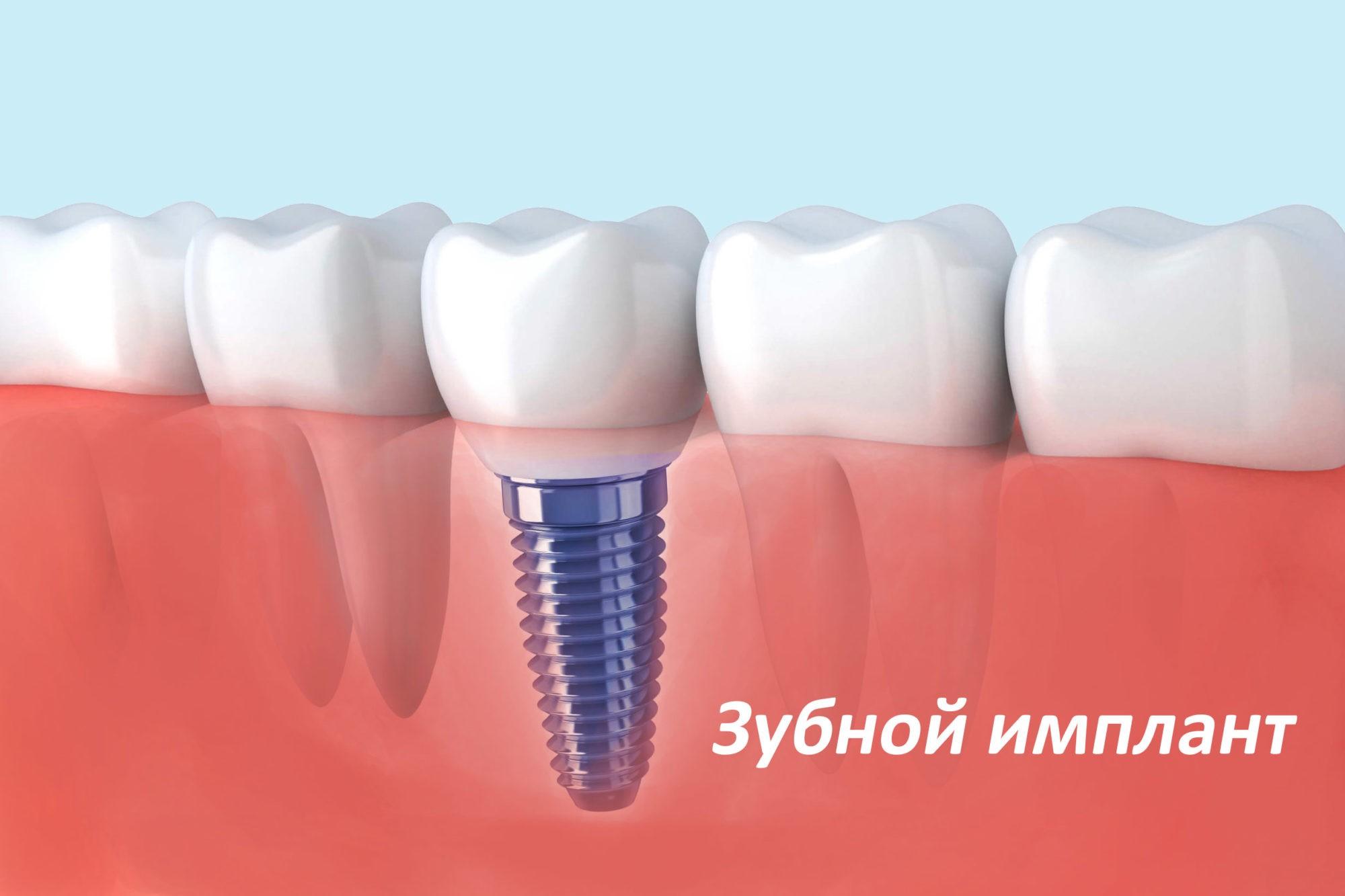 зубной имплант в Краснодаре