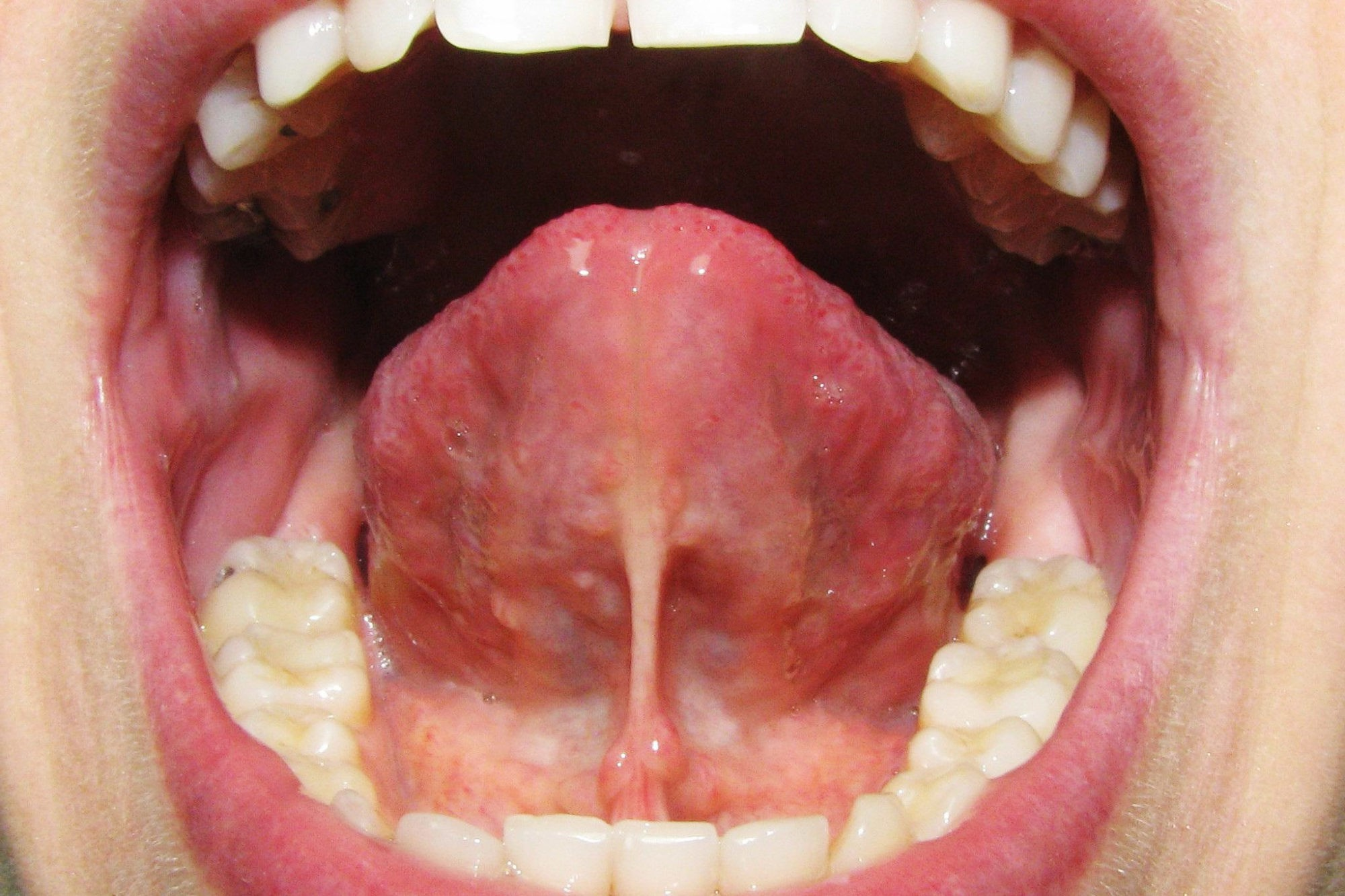 Пластика уздечки губы, языка, тяжей