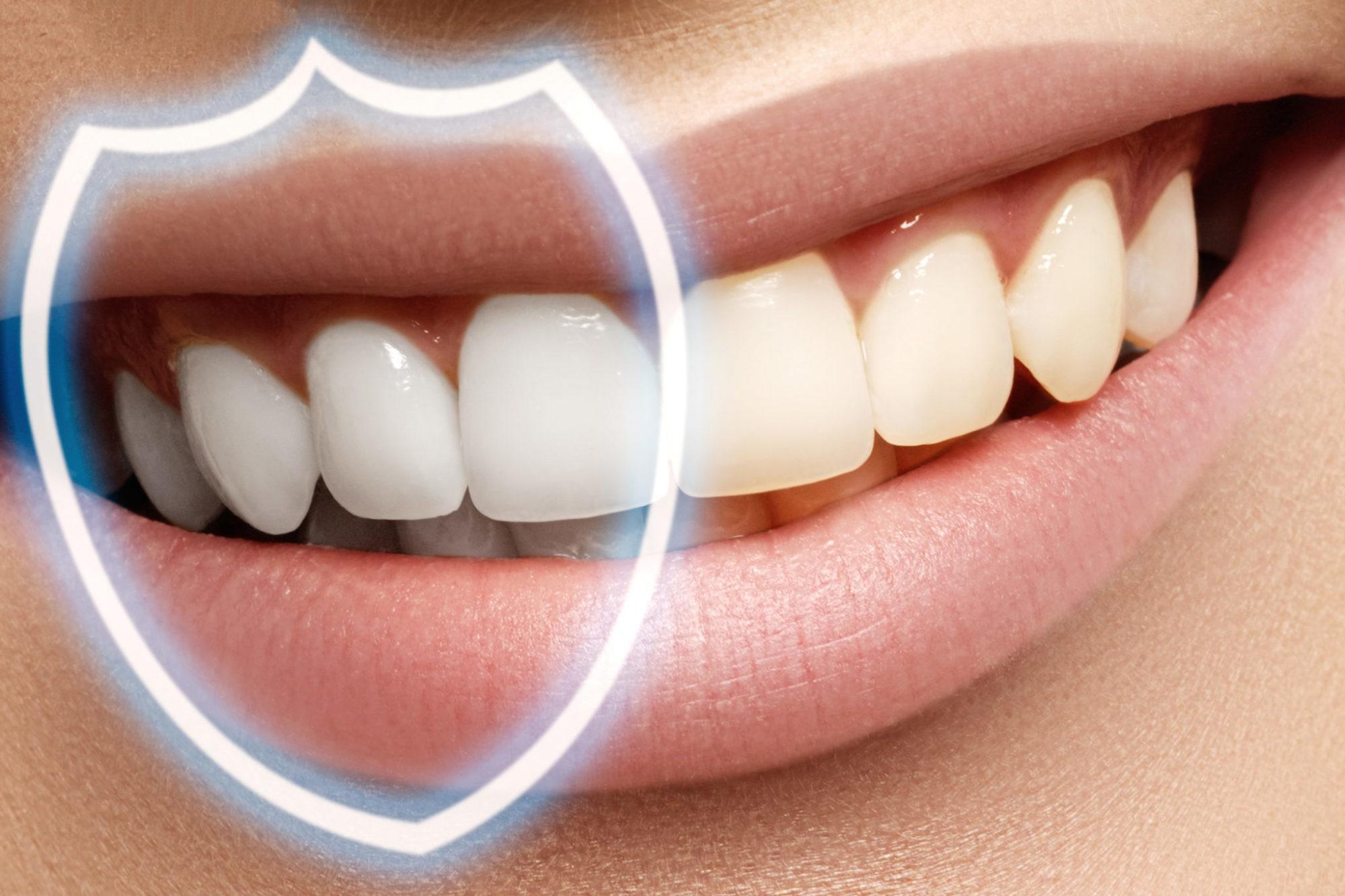 Восстановление зубной эмали в Краснодаре