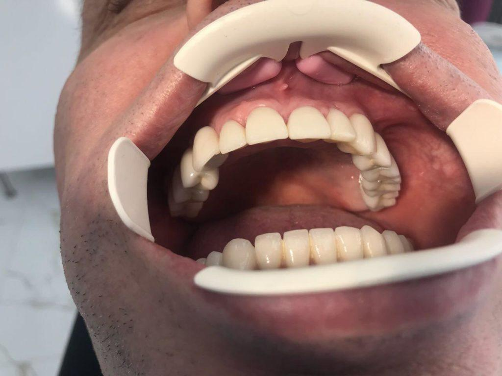 Лечение зубов - имплантация
